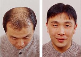 Exoderm hair impant