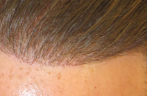Nido Hair implant Exoderm Medical Centers